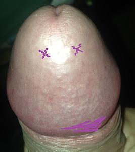 Purple Spot Penis 71