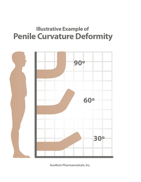 peyronies-disease-curve-degree