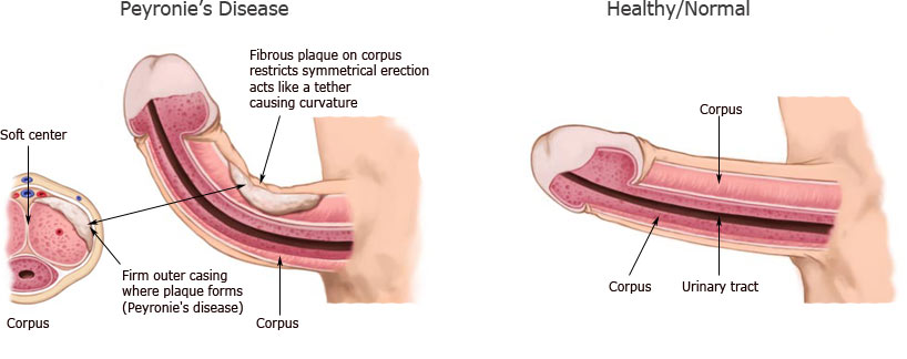 peyronies-versus-normal-penis