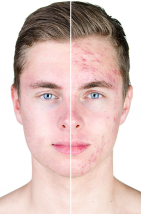 Not Erik, but representative of a 90% reduction in acne.