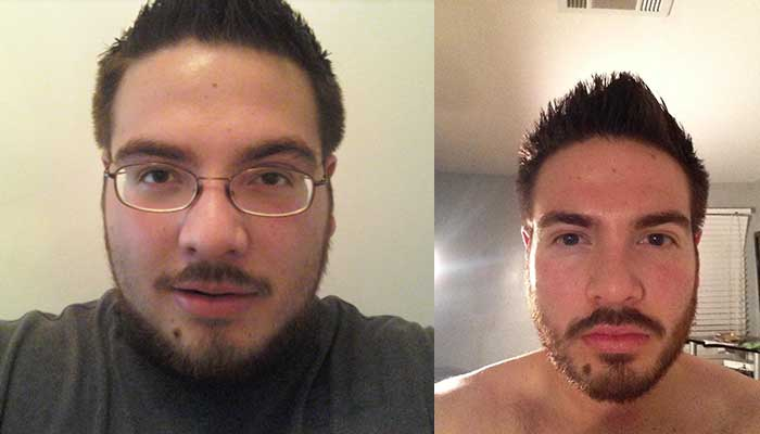 face weight loss before and after 6