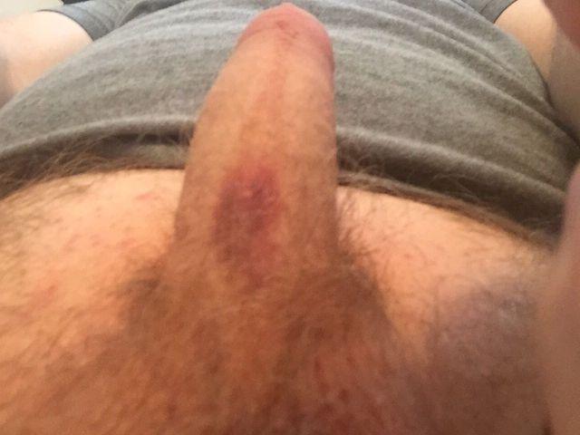 bruise.jpg