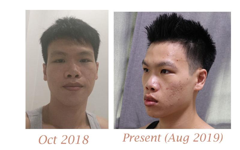 face_vs.jpg