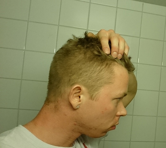 Is My Hairline Receding Good Looking Loser Online Forum
