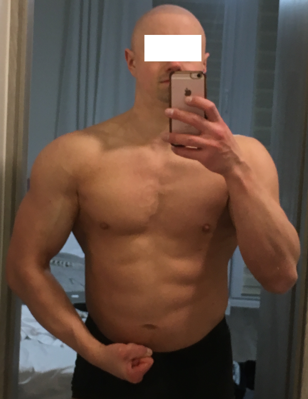 Phallosan Forte Review And Results Gains Mystory March 2019