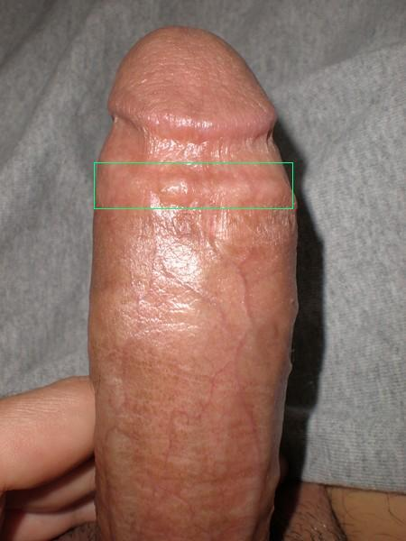 Penis vein swelling after sex