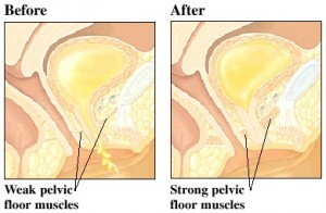 before-after-kegels